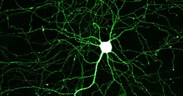 neuron2
